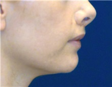 Dermal Fillers After Photo by Ricardo Rodriguez, MD; Lutherville-Timonium, MD - Case 27319
