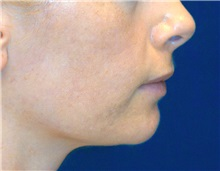 Dermal Fillers Before Photo by Ricardo Rodriguez, MD; Lutherville-Timonium, MD - Case 27319