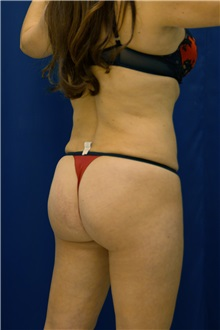 Buttock Implants After Photo by Ricardo Rodriguez, MD; Lutherville-Timonium, MD - Case 27375