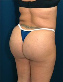 Buttock Implants After Photo by Ricardo Rodriguez, MD; Lutherville-Timonium, MD - Case 27376