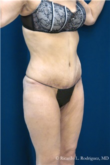 Tummy Tuck After Photo by Ricardo Rodriguez, MD; Lutherville-Timonium, MD - Case 32295