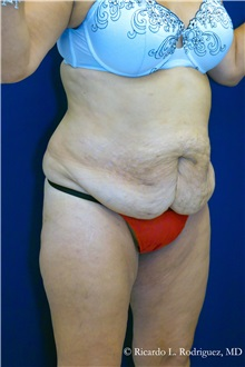 Tummy Tuck Before Photo by Ricardo Rodriguez, MD; Lutherville-Timonium, MD - Case 32295