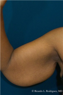 Arm Lift Before Photo by Ricardo Rodriguez, MD; Lutherville-Timonium, MD - Case 32398