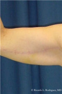 Arm Lift After Photo by Ricardo Rodriguez, MD; Lutherville-Timonium, MD - Case 32399