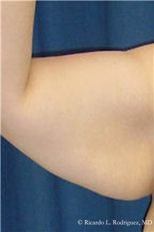 Arm Lift Before Photo by Ricardo Rodriguez, MD; Lutherville-Timonium, MD - Case 32399
