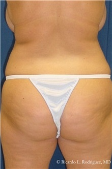 Body Lift Before Photo by Ricardo Rodriguez, MD; Lutherville-Timonium, MD - Case 32400