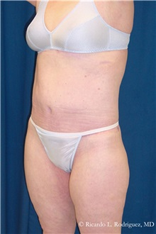 Body Lift After Photo by Ricardo Rodriguez, MD; Lutherville-Timonium, MD - Case 32401