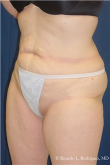 Body Lift Before Photo by Ricardo Rodriguez, MD; Lutherville-Timonium, MD - Case 32402