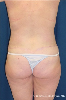 Body Lift After Photo by Ricardo Rodriguez, MD; Lutherville-Timonium, MD - Case 32404