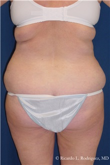 Body Lift Before Photo by Ricardo Rodriguez, MD; Lutherville-Timonium, MD - Case 32404
