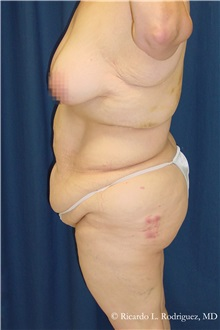 Body Lift Before Photo by Ricardo Rodriguez, MD; Lutherville-Timonium, MD - Case 32406