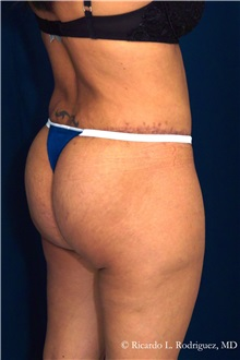 Body Lift After Photo by Ricardo Rodriguez, MD; Lutherville-Timonium, MD - Case 32407