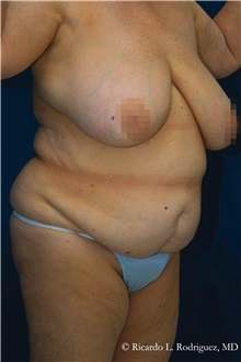 Body Lift Before Photo by Ricardo Rodriguez, MD; Lutherville-Timonium, MD - Case 32408