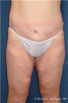 Body Lift After Photo by Ricardo Rodriguez, MD; Lutherville-Timonium, MD - Case 32409