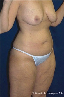 Body Lift Before Photo by Ricardo Rodriguez, MD; Lutherville-Timonium, MD - Case 32410