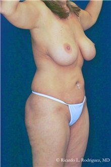 Body Lift Before Photo by Ricardo Rodriguez, MD; Lutherville-Timonium, MD - Case 32411