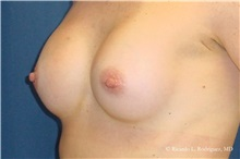 Breast Augmentation After Photo by Ricardo Rodriguez, MD; Lutherville-Timonium, MD - Case 32452