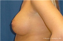 Breast Augmentation After Photo by Ricardo Rodriguez, MD; Lutherville-Timonium, MD - Case 32453