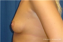 Breast Augmentation Before Photo by Ricardo Rodriguez, MD; Lutherville-Timonium, MD - Case 32453