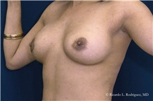 Breast Augmentation After Photo by Ricardo Rodriguez, MD; Lutherville-Timonium, MD - Case 32454