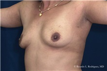 Breast Augmentation Before Photo by Ricardo Rodriguez, MD; Lutherville-Timonium, MD - Case 32454