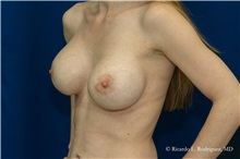 Breast Augmentation After Photo by Ricardo Rodriguez, MD; Lutherville-Timonium, MD - Case 32455