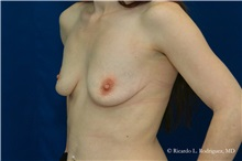 Breast Augmentation Before Photo by Ricardo Rodriguez, MD; Lutherville-Timonium, MD - Case 32455