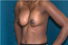 Breast Augmentation After Photo by Ricardo Rodriguez, MD; Lutherville-Timonium, MD - Case 32456
