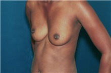 Breast Augmentation Before Photo by Ricardo Rodriguez, MD; Lutherville-Timonium, MD - Case 32456