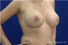 Breast Augmentation After Photo by Ricardo Rodriguez, MD; Lutherville-Timonium, MD - Case 32458