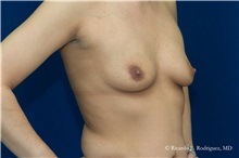 Breast Augmentation Before Photo by Ricardo Rodriguez, MD; Lutherville-Timonium, MD - Case 32458