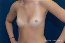 Breast Augmentation Before Photo by Ricardo Rodriguez, MD; Lutherville-Timonium, MD - Case 32459