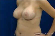 Breast Augmentation After Photo by Ricardo Rodriguez, MD; Lutherville-Timonium, MD - Case 32460