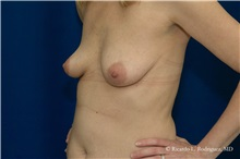 Breast Augmentation Before Photo by Ricardo Rodriguez, MD; Lutherville-Timonium, MD - Case 32460
