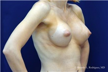 Breast Augmentation After Photo by Ricardo Rodriguez, MD; Lutherville-Timonium, MD - Case 32463