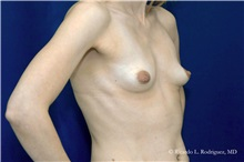 Breast Augmentation Before Photo by Ricardo Rodriguez, MD; Lutherville-Timonium, MD - Case 32463