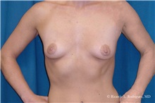 Breast Lift Before Photo by Ricardo Rodriguez, MD; Lutherville-Timonium, MD - Case 32493