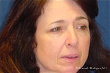 Brow Lift Before Photo by Ricardo Rodriguez, MD; Lutherville-Timonium, MD - Case 32527