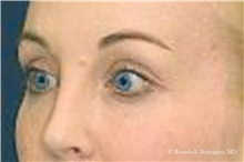 Brow Lift After Photo by Ricardo Rodriguez, MD; Lutherville-Timonium, MD - Case 32528