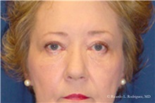 Brow Lift After Photo by Ricardo Rodriguez, MD; Lutherville-Timonium, MD - Case 32529