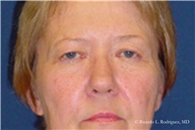 Brow Lift Before Photo by Ricardo Rodriguez, MD; Lutherville-Timonium, MD - Case 32529