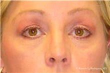 Brow Lift After Photo by Ricardo Rodriguez, MD; Lutherville-Timonium, MD - Case 32530
