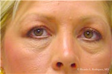 Brow Lift Before Photo by Ricardo Rodriguez, MD; Lutherville-Timonium, MD - Case 32530