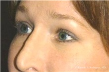 Brow Lift After Photo by Ricardo Rodriguez, MD; Lutherville-Timonium, MD - Case 32531