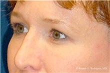 Brow Lift Before Photo by Ricardo Rodriguez, MD; Lutherville-Timonium, MD - Case 32531