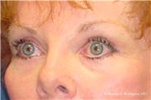 Brow Lift After Photo by Ricardo Rodriguez, MD; Lutherville-Timonium, MD - Case 32532