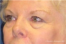 Brow Lift Before Photo by Ricardo Rodriguez, MD; Lutherville-Timonium, MD - Case 32532