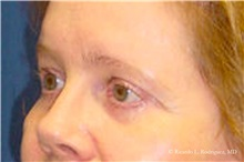 Brow Lift After Photo by Ricardo Rodriguez, MD; Lutherville-Timonium, MD - Case 32534