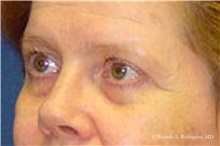 Brow Lift Before Photo by Ricardo Rodriguez, MD; Lutherville-Timonium, MD - Case 32534