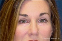 Brow Lift After Photo by Ricardo Rodriguez, MD; Lutherville-Timonium, MD - Case 32536